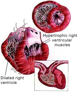 diagram of heartworm disease
